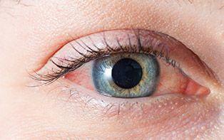 Tips van je online apotheker voor het verzorgen van rode ogen